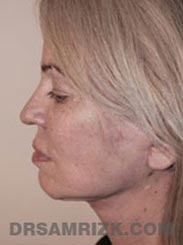 Female patient Postoperative Facelift procedure - side view