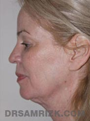 Female patient Preoperative Facelift procedure - side view