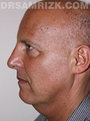 male before Facelift - picture