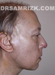 Facelift after photo Male