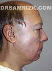 Male Facelift procedure before - picture