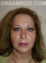 Facelift patient after - picture