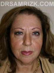 Female Facelift procedure before - pictures