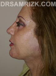 Female Facelift procedure after - side view