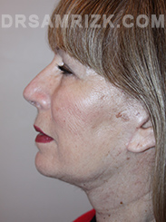 Facelift - After Photo Patient22