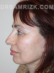 Facelift - After Photo Patient17