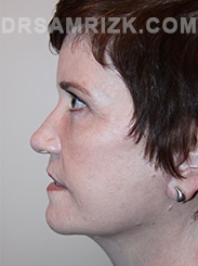 Facelift - After Photo Patient18