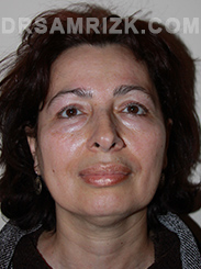 Facelift - Before Photo Patient17