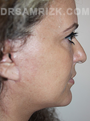 Facelift - After Photo Patient23