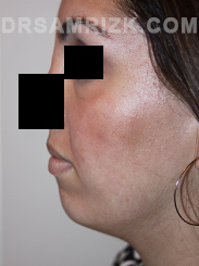 Facelift - Before Photo Patient24
