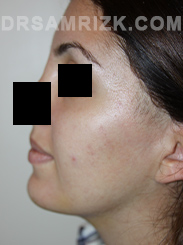 Facelift - After Photo Patient24