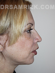 Facelift - After Photo Patient19