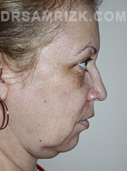 Facelift - Before Photo Patient19
