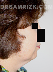 Facelift - Before Photo Patient20