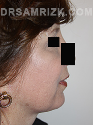 Facelift - After Photo Patient20