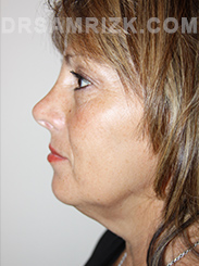 Facelift - Before Photo Patient21