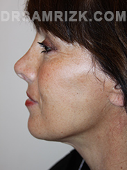 Facelift - After Photo Patient21