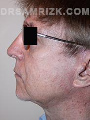 Facelift - After Photo Patient14