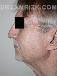 Facelift - Before Photo Patient14