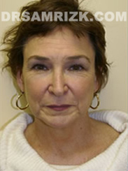 Facelift - Before Photo Patient6