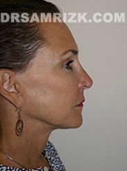 Facelift - After Photo Patient6