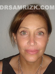 Facelift - After Photo Patient7