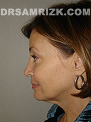 Facelift - Before Photo Patient7