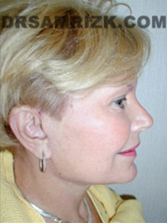 Facelift - After Photo Patient15