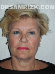 Facelift - Before Photo Patient15