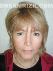 Facelift - After 2 Years Photo Patient5