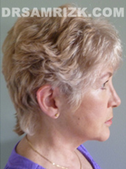 Facelift - After 8 Years Photo Patient5