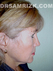 Facelift - Before Photo Patient5