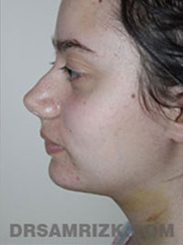 Facelift - After Photo Patient26