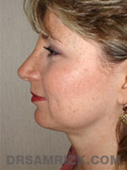 Facelift - After Photo Patient27