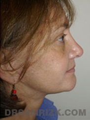Facelift - After Photo Patient28