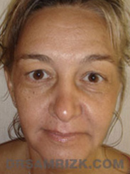 Facelift - Before Photo Patient28