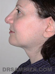 Facelift - After Photo Patient29