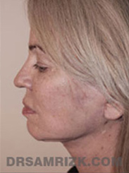 Facelift - After Photo Patient30