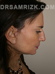 Facelift - After Photo Patient31
