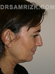 Facelift - Before Photo Patient31