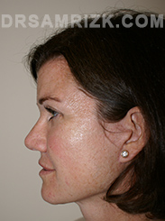 Facelift - After Photo Patient2