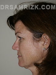 Facelift - Before Photo Patient2