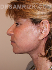 Facelift - After Photo Patient13