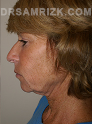 Facelift - Before Photo Patient13