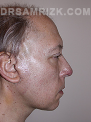 Facelift - After Photo Patient3