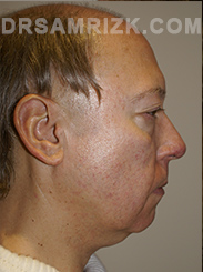Facelift - Before Photo Patient3