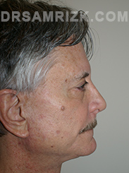 Facelift - After Photo Patient10
