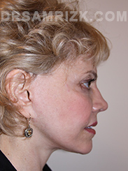 Facelift - After Photo Patient16