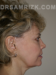 Facelift - Before Photo Patient16