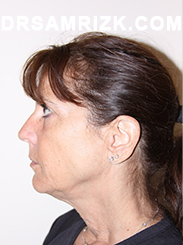 Facelift - Before Photo Patient8
